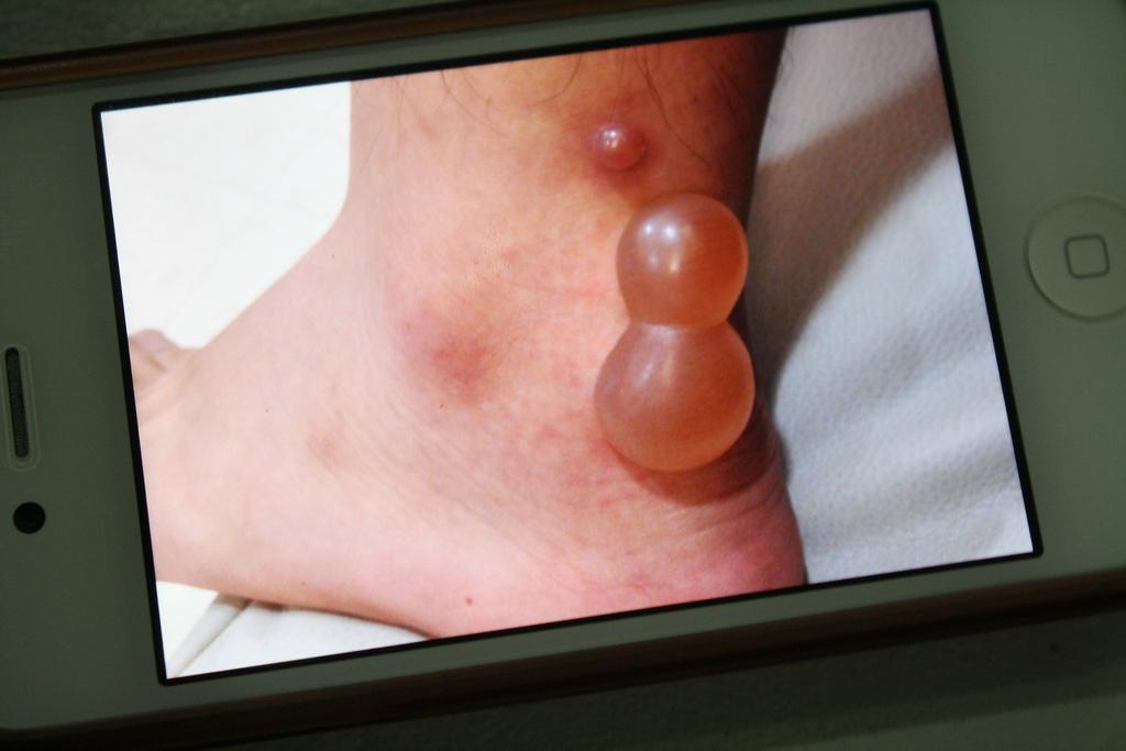 フィリピン旅行で蚊に噛まれた足